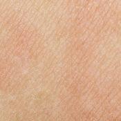 sensitve_delicate_skin_dibimilano_800x80