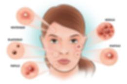 header-types-of-acne-886x590.jpg