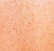 skin_dyschromias_dibimilano_800x800_0.jp