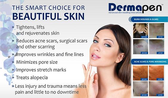 skin needling 2.jpg