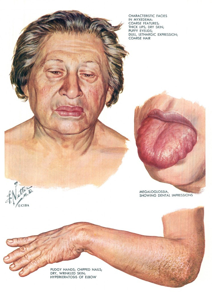 The Work Of Frank H. Netter, M.D.