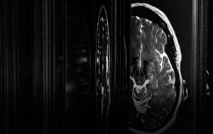 The Brain as Open Book