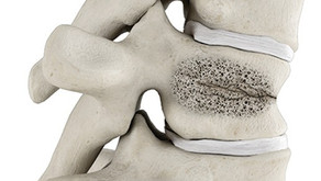 Sudden Back Pain May Be an Unrecognized Broken Bone