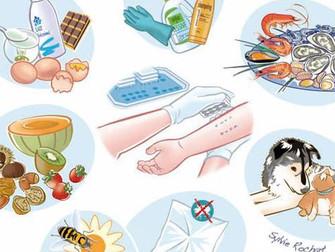 Allergies : ce que je dois savoir