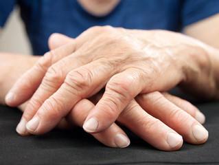 Artritis | Arthritis