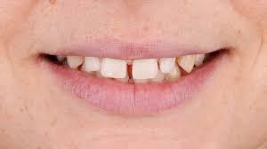Restaurações Estéticas para fechamento de espaços entre os dentes (DIASTEMAS)