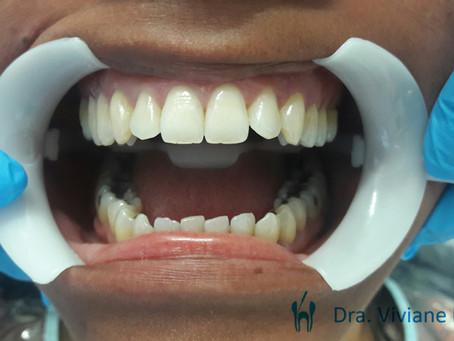 Dentes clareados em uma hora e meia