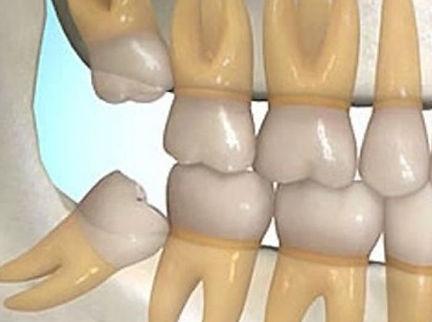 Dentista Taubaté
