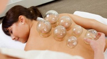 Cupping- this needle-free technique is like a reverse massage!