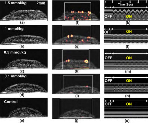 Research Summary: Detection of magnetic nanoparticles in tissue using magneto-motive ultrasound
