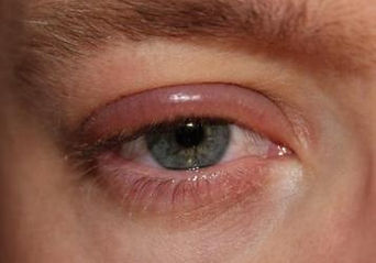 belpharitis meibomian gland dysfunction