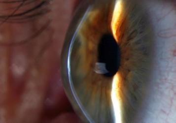 keratoconus corneal cross-linking