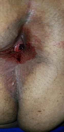 Trombosis Hemorroidal