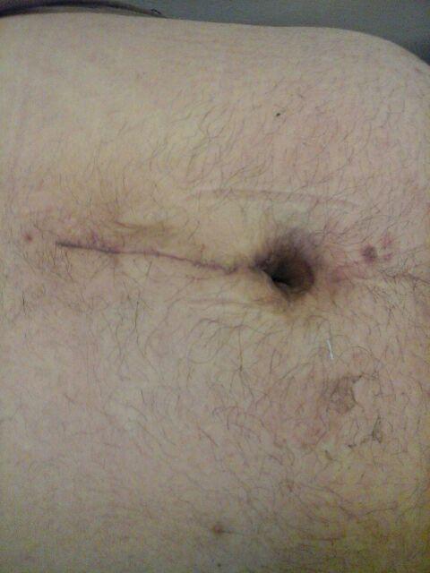 Cirugia de Hernia umbilical