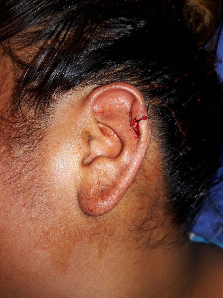 Reconstruccion Pabellon auricular