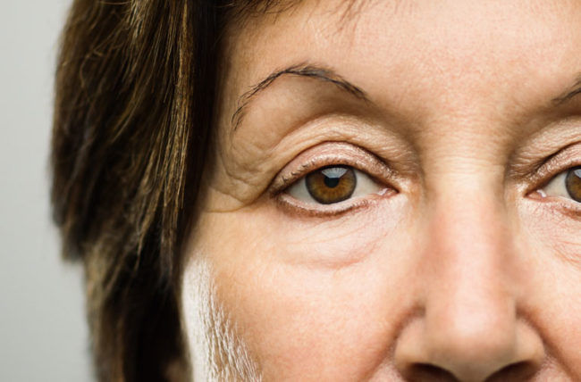 Treatment of Droopy Eye Lids