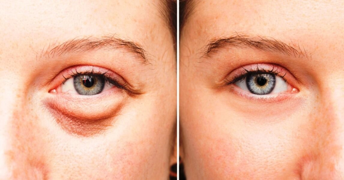 Treatment of below eyes bags and darknes