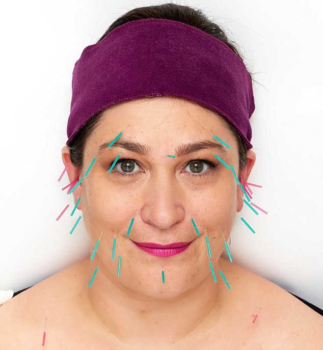 Facial Acupuncture, Cosmetic Acupuncture