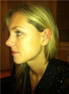 "Taylor having ear acupuncture. She felt ""calmer immediately""."
