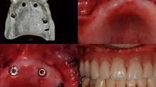 Dallo Studio dentistico Anaclerico trovi l'implantologia senza bisturi