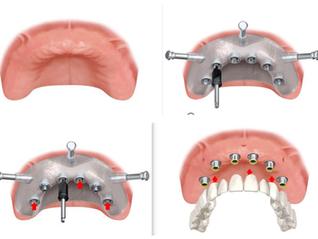 Implantologia dentale senza bisturi
