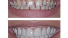 Riallineamento immediato dei denti, senza apparecchio ortodontico