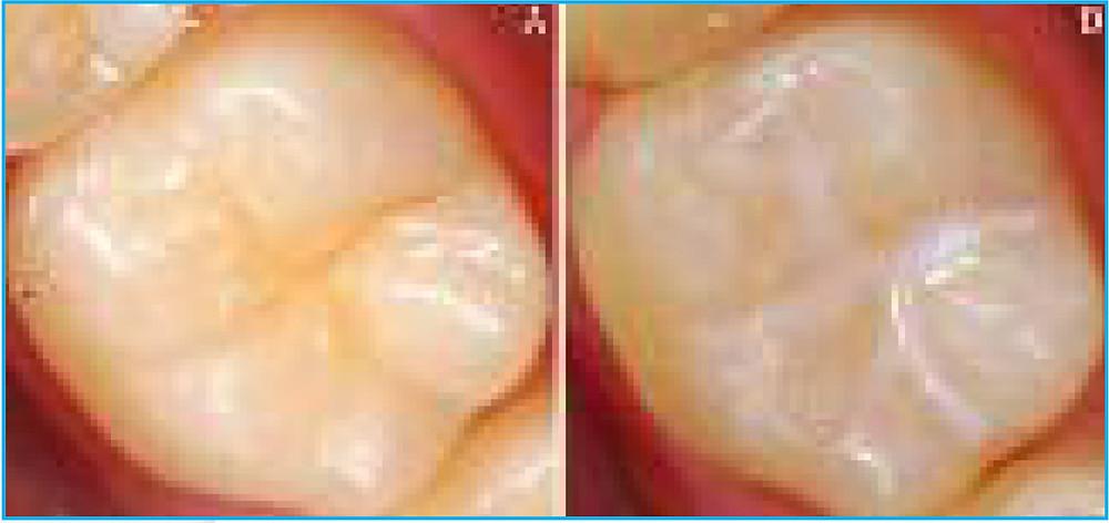 prima prevenzione dei denti permanenti