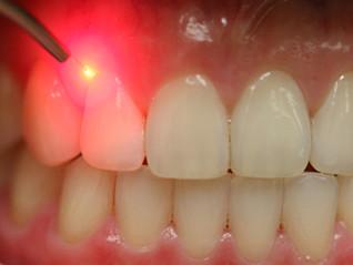 """Il nuovo volto dell'odontoiatria """"gentile"""":   il Laser."""