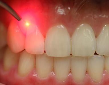 trattamenti dentali con laser