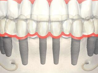 Vuoi avere denti fissi sin da subito?