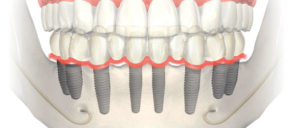 impianto dentale fisso