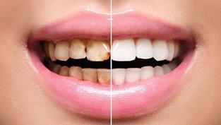 Faccette Dentali non invasive