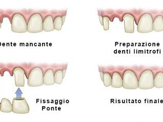 Dente perso: ponte o impianto dentale?