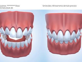 Vorresti vedere il risultato finale della tuaterapia ortodontica?