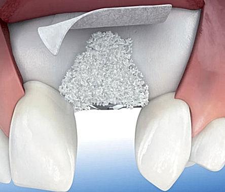 rigenerazione ossea.JPG