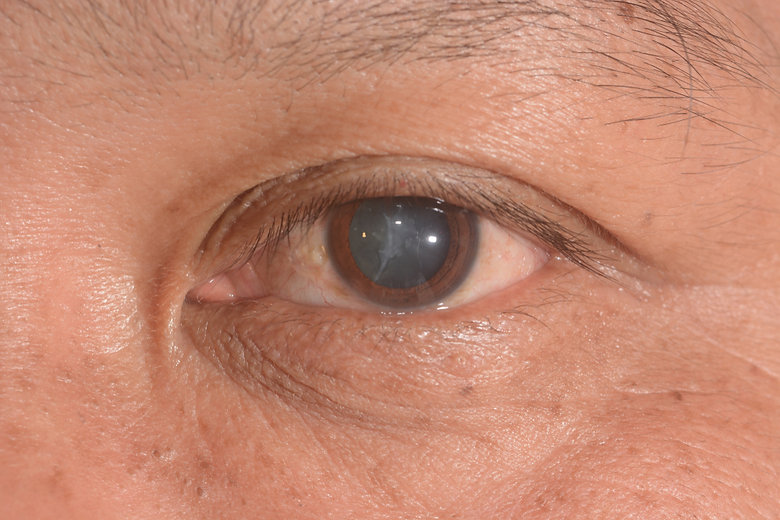 Signs-You-Need-Cataract-Surgery-Specialt