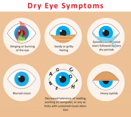 dry-eye-3 (1).png