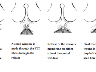 THE MISUNDERSTANDING OF POSTERIOR TONGUE TIE ANATOMY AND RELEASE TECHNIQUE
