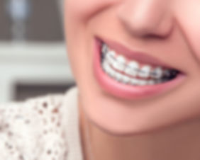 The-Importance-Of-Dental-Hygiene-When-We