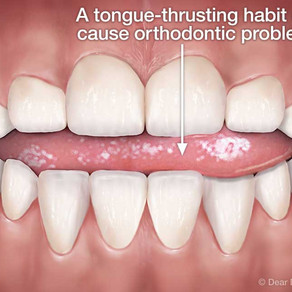 Tongue Thrust in Children and Adults: What You Should Know