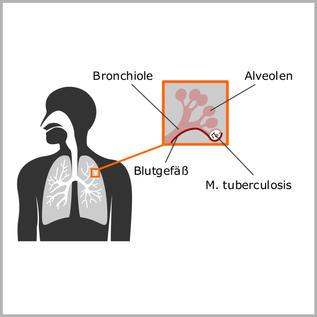 Alveole.
