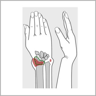 Fraktur Hand