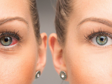 Eye Infections: How You Can Prevent & Treat Them