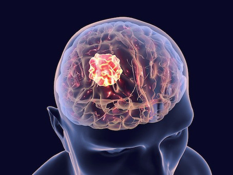 Brain Tumor: Signs & Symptoms, Causes And It's Risk Factors