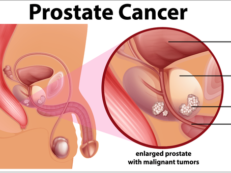 Prostate Cancer In India Likely To Double By 2020