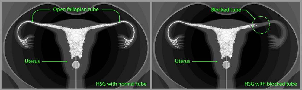 in vitro fertiilization is used in the case of blocked fallopian tubes