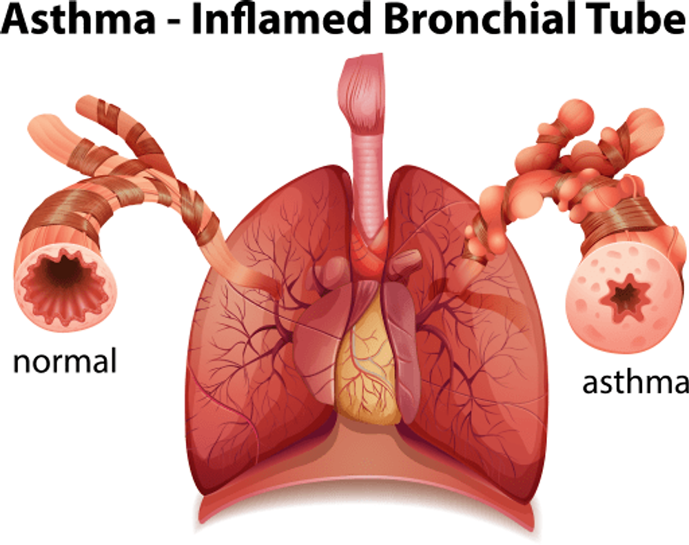 Inflamed Airway In Asthma
