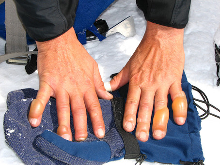 Frostbite: First Aid Steps And Early Signs Of It
