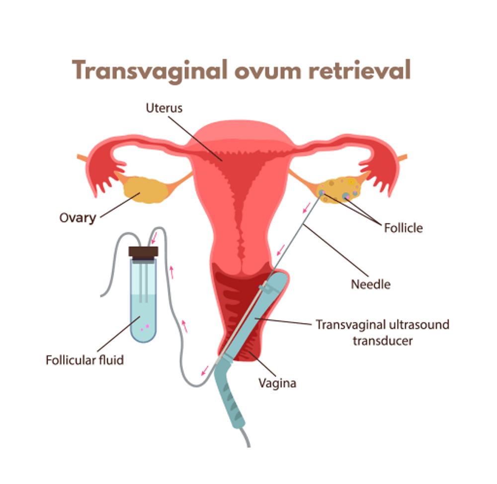 Egg Retrieval or trans vaginal egg retrieval