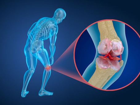 Osteoporosis: Know About The Disease That Makes The Bone Fragile
